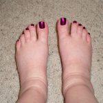 Посмотрите на свои ноги. Вот какую болезнь скрывают